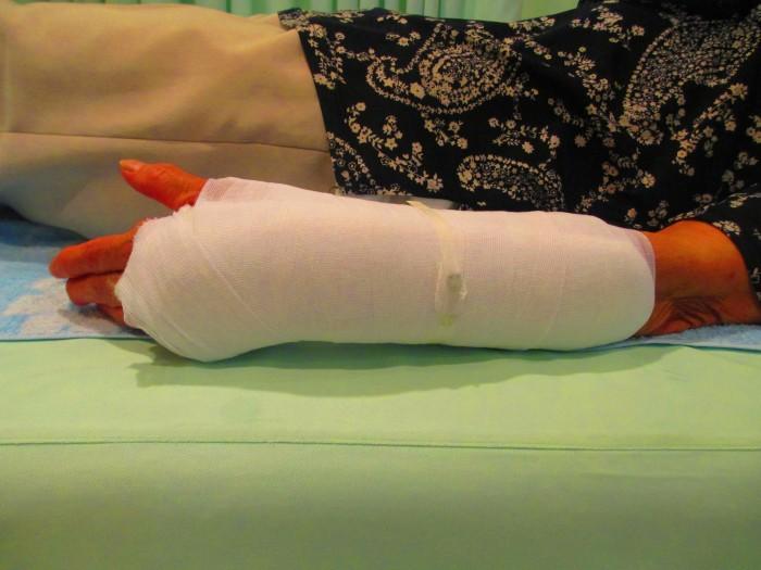 骨折の包帯固定